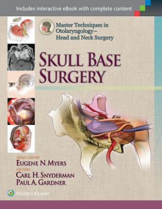 Master Techniques in Otolaryngology - Head and Neck Surgery: