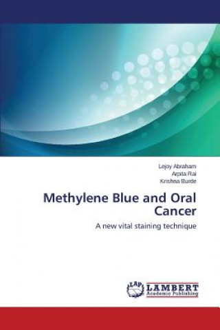 Methylene Blue and Oral Cancer