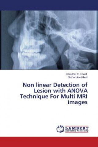 Non linear Detection of Lesion with ANOVA Technique For Multi MRI images