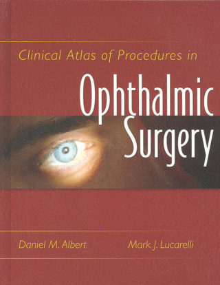 Clinical Atlas of Procedures in Ophthalmic Surgery