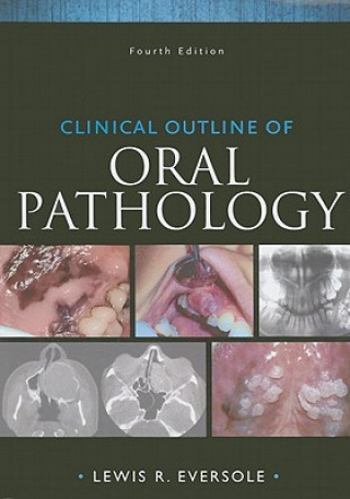 Clinical Outline of Oral Pathology