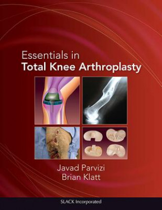 Essentials in Total Knee Arthroplasty
