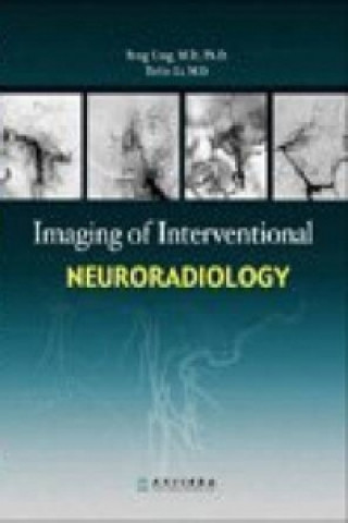 Imaging of Interventional Neuroradiology