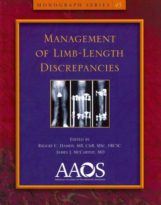 Management of Limb-Length Discrepancies
