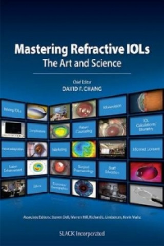 Mastering Refractive IOLs
