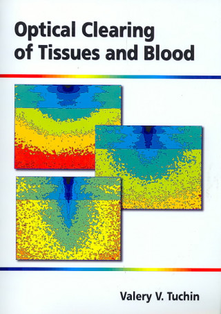 Optical Clearing of Tissues and Blood