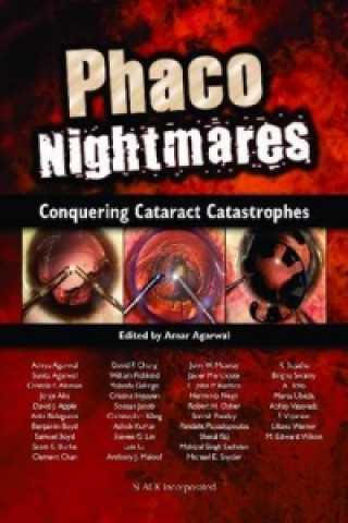 Phaco Nightmares