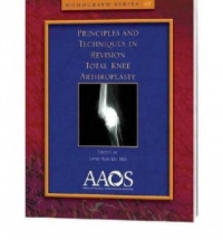 Principles and Techniques in Revision Total Knee Arthroplasty