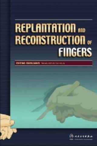 Replantation and Reconstruction of Fingers