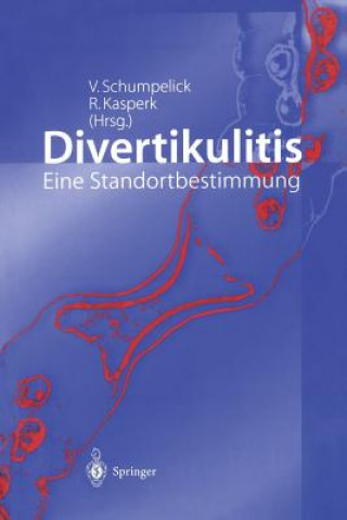 Divertikulitis